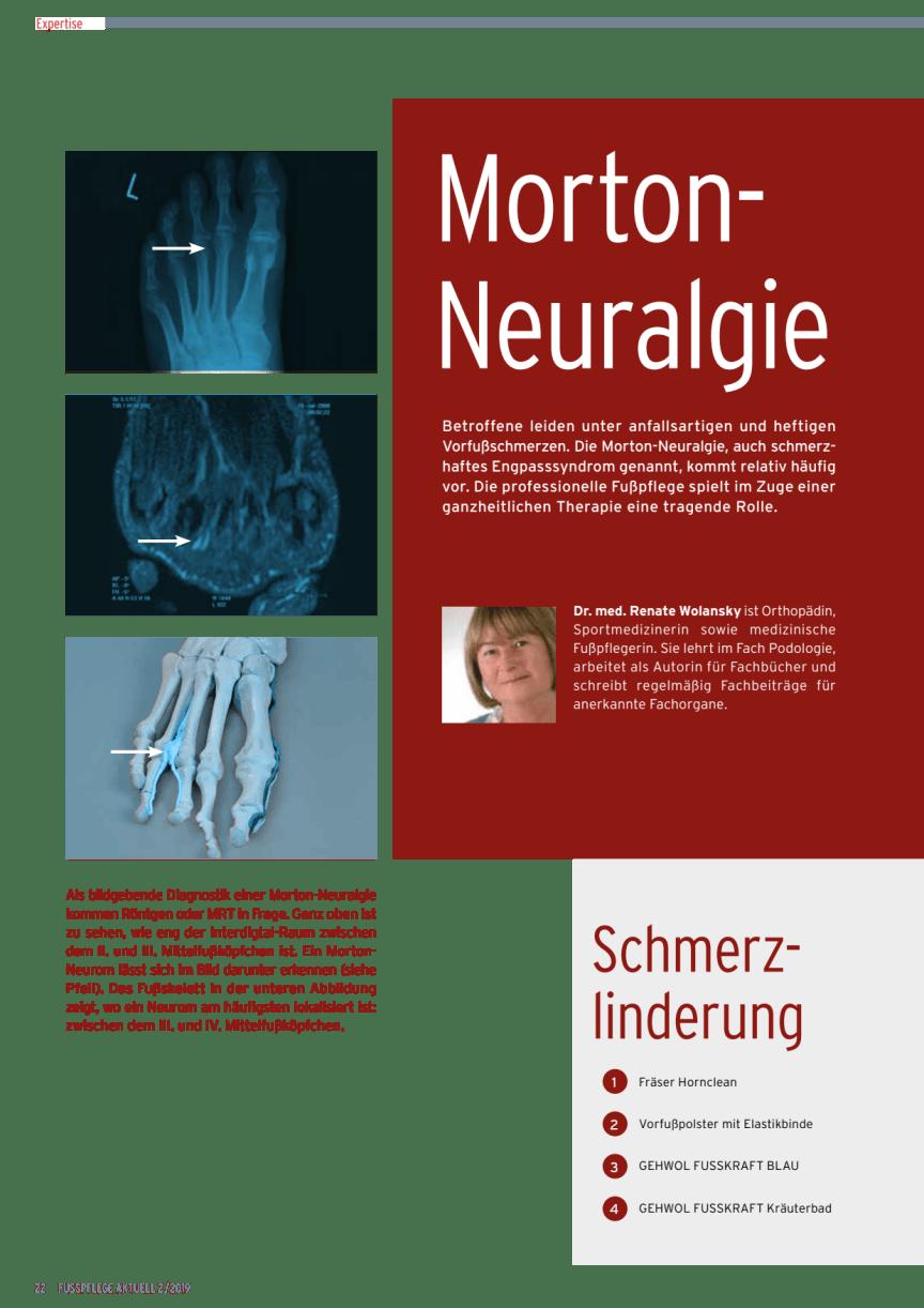 Morton Neuralgie
