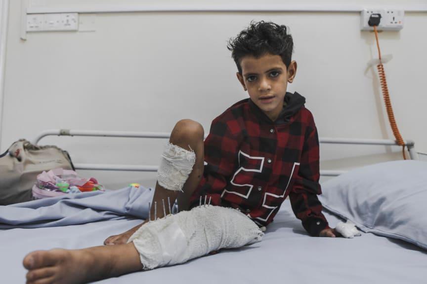 Omar, 8 år i Jemen