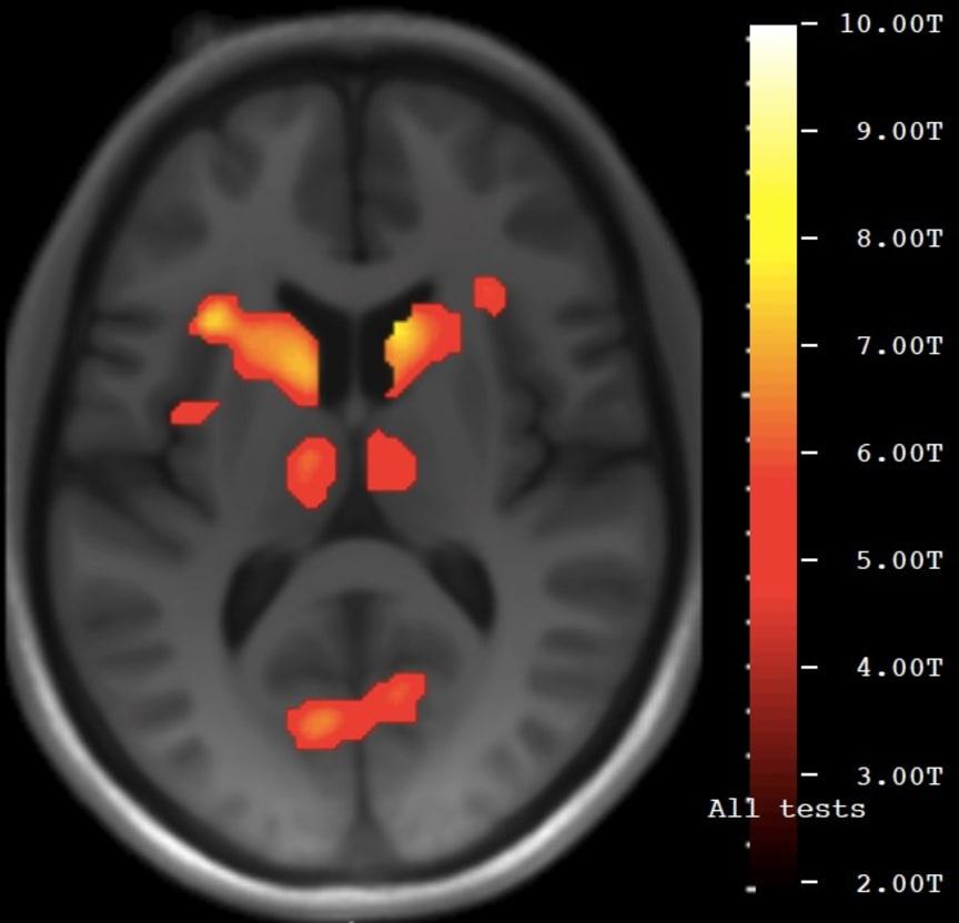 fMRI-bild av hjärna