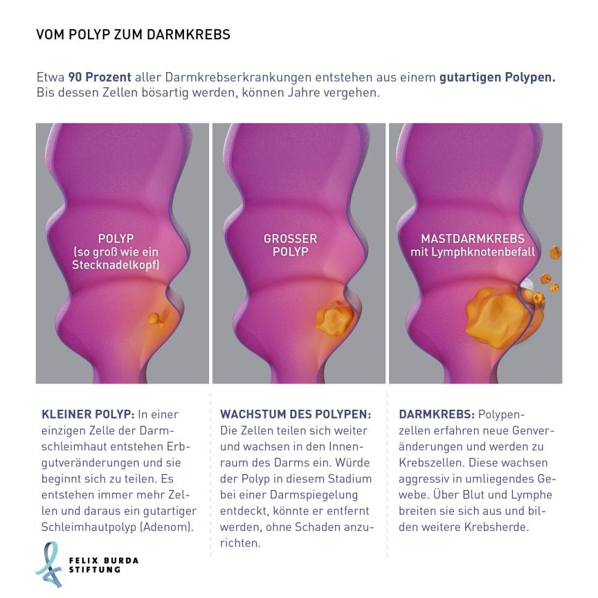 Grafische Darstellung des Wachstums vom Polyp zum Darmkrebs