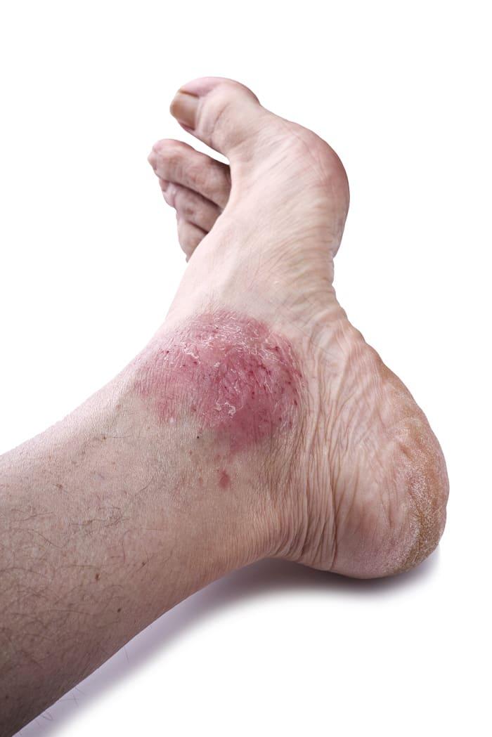 Arthrose, Rheuma und Gicht: Medikamente für die Gelenke
