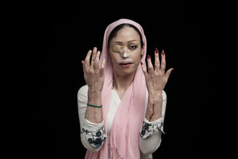 Fire of Hatred, fot. Asghar Khamseh