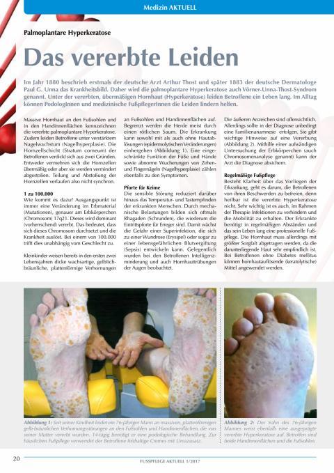 Palmoplantare Hyperkeratose: Das vererbte Leiden