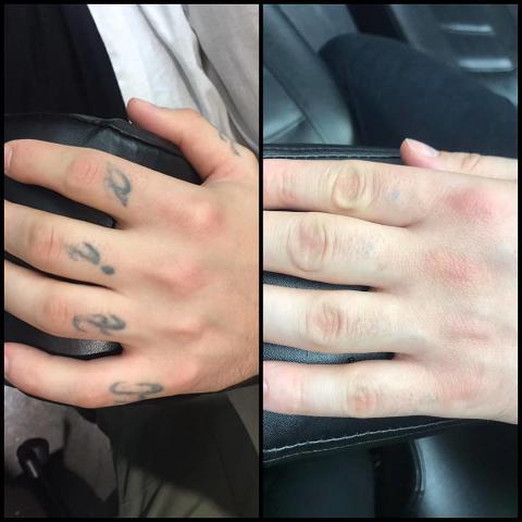 Fjernelse af tatovering: Har du fortrudt en tatovering?