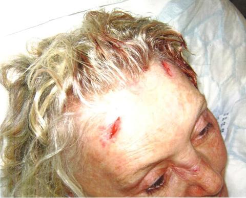 Mrs Winner's injuries