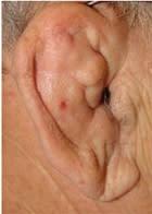 Transplantation av broskhinna - ny behandlingsmetod vid artros i underarmen