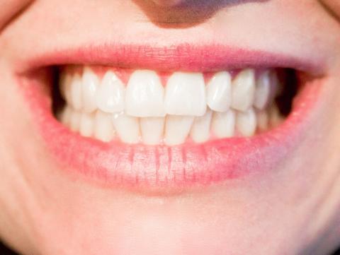 Diabetiker löper större risk att drabbas av tandlossning