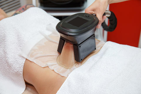 Little-known Permanent Side Effects of Cryolipolysis (Fat Freezing Treatments)