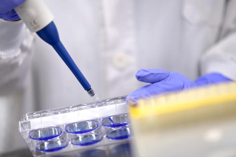 AbbVie forscht gemeinsam mit der Universität Harvard an neuen Viruserkrankungen