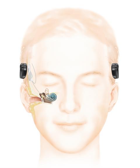 Wie das Hören mit einem Cochlea-Implantat (frei vom Ohr) funktioniert