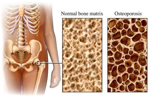 Politisk hearing: Hur kan vi undvika onödiga osteoporosfrakturer i Sundsvall?