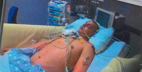 Asbjørn på Aberdeen hospital - i koma - credits Judith Morell