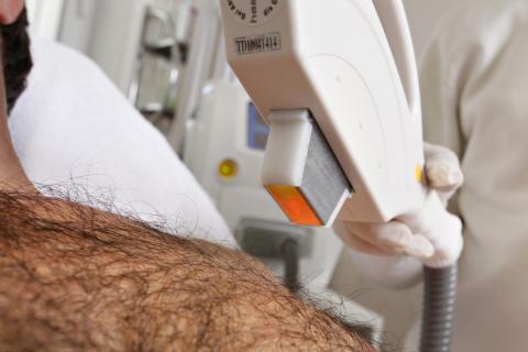 Enthaarung mit Laserbehandlung