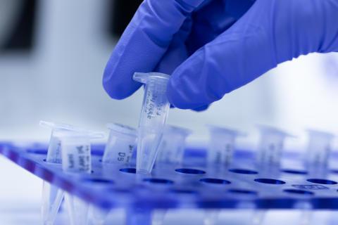 Pressemitteilung ALM e.V. - Abstrich-Untersuchungen mit etablierten PCR-Verfahren bleiben das Mittel der Wahl