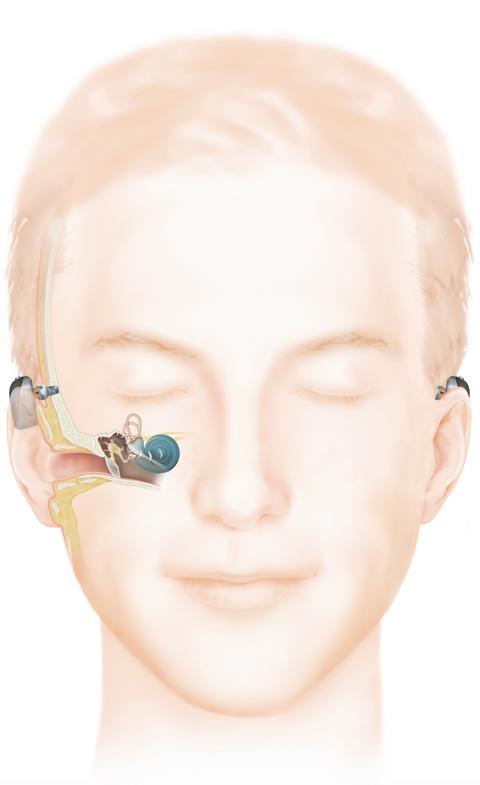 Wie das Hören mit einem Baha Knochenleitungsimplantat (Connect) funktioniert