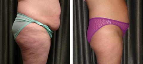 Tre av de vanligaste behandlingarna vid fetma
