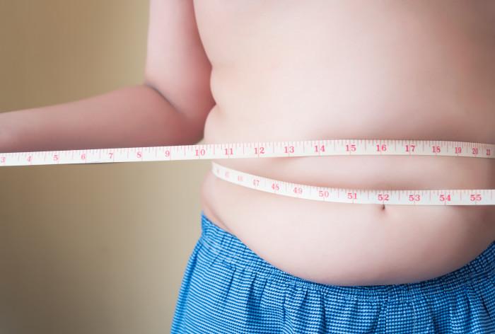 Fetma och karies ökar bland barn i socioekonomiskt svaga områden – hur ändrar vi på det?