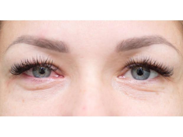 svullen runt ögonen allergi