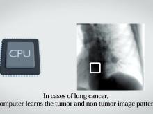 New Heavy-ion Radiotherapy Technology Tracks Tumors