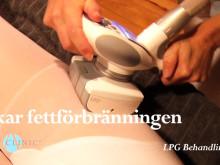 LPG behandling på Art Clinic