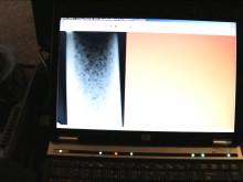 Putkiston kuntotutkimus (digitaalisella röntgenkuvauksella)