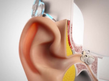 Wie funktioniert ein Cochlea-Implantat?