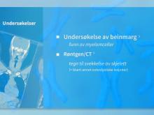 Det du trenger å vite om Myelomatose (Benmargskreft)