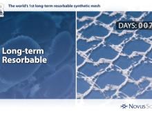 Animation of TIGR® Matrix Surgical Mesh characteristics