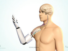 World premiere of muscle and nerve-controlled arm prosthesis