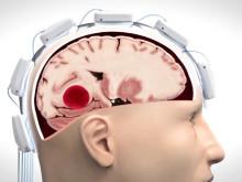 Så skiljer Strokefinder hjärnblödning från blodpropp