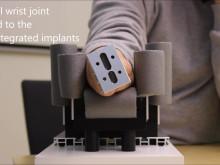 En video som visar hur den konstgjorda handleden fungerar.