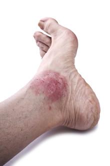 Psoriasis-Arthritis: Durch Haut und Bein