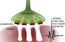Tidig diagnos och behandling kan förhindra muskelförtvining vid muskelsjukdom