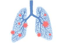 Nytt forskningsprojekt ska undersöka kopplingen mellan astma och covid-19