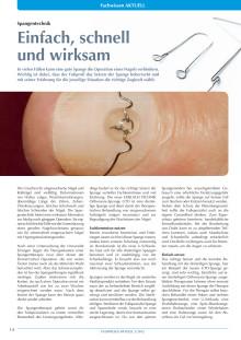 Spangentechnik mit der Orthonyxie-Spange GTO von GERLACH TECHNIK: Einfach, schnell und wirksam