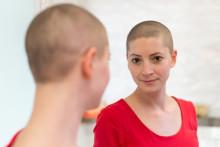 Weniger Alopezie unter onkologischer Therapie?