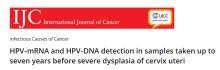 International Journal of Cancer publicerar sju års longitudinella effektdata för Aptima HPV Assay
