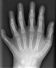 6 Dinge, die du über eine Rheumatherapie wissen solltest