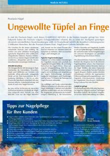 Psoriasis: ungewollte Tüpfel an Finger- und Fußnägeln