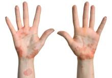 SKYRIZI för behandling av måttlig till svår plackpsoriasis hos vuxna ingår i högkostnadsskyddet och finns tillgängligt i Sverige