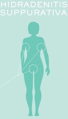 EU godkänner AbbVies läkemedel HUMIRA® (adalimumab) för behandling av patienter med den kroniska hudsjukdomen hidradenitis suppurativa (HS)