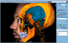 Digital perfection and optimal ergonomics – Planmeca at the Sofia Dental Meeting