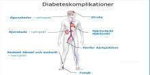 Nya diabetesläkemedel kan minska risk för tidig hjärtdöd