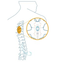MEDTRONIC RECEIVES CE MARK FOR THE WORLD'S SMALLEST FULLY IMPLANTABLE SPINAL CORD STIMULATOR