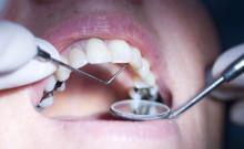 Unabhängige Patientenberatung Deutschland registriert beunruhigende Trends in der zahnmedizinischen Behandlung bei Kindern und älteren Patienten – Monitor beleuchtet Probleme für Patientensicherheit