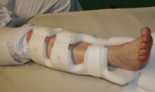Plastskena kan ersätta gips vid fotledsbrott