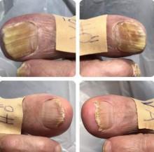 Lunula laser på Axelsons Medicinsk Fotvårds utbildning