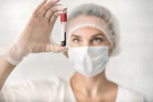Neue Laboranalytik von Vitamin K2