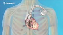 Tutkijat ovat löytäneet geneettisen syyn sydänperäiselle äkkikuolemalle