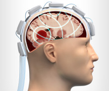Microwave helmet yields fast and safe evaluation of head injuries